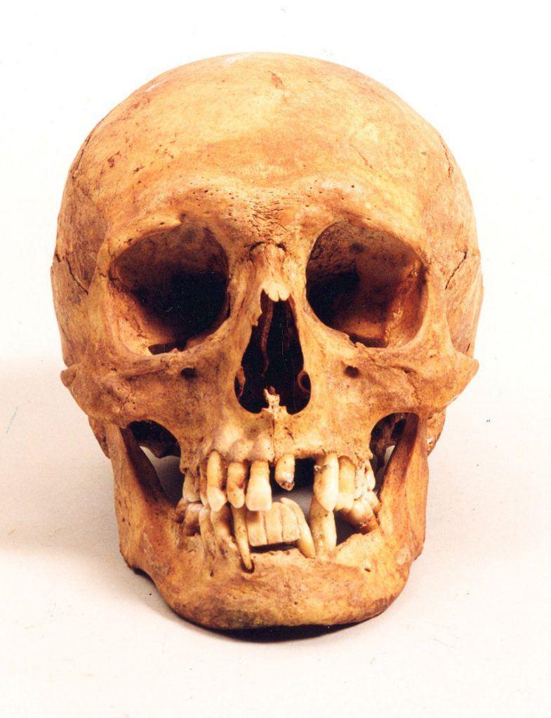 Schedel van Servaas Colom, herbergier aan de Koorstraat met een gebitje klemvast tussen bestaande tanden in de onderkaak, gevonden in de Grote Sint Laurenskerk in 1994