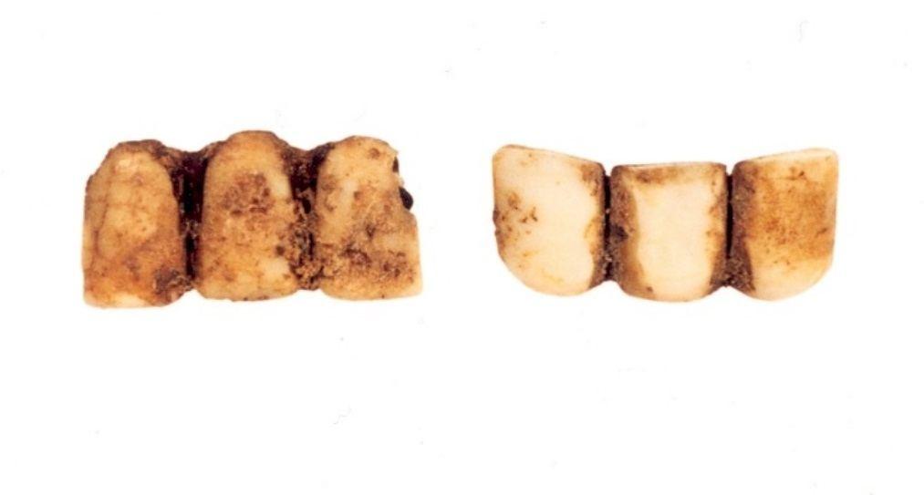 Twee gebitjes van nijlpaardivoor (Bloemstraat, 1999)