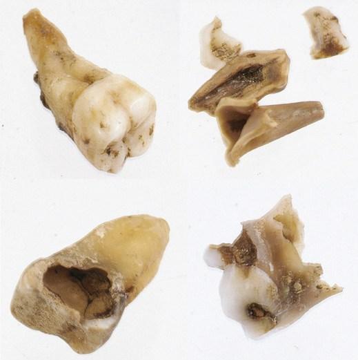 Enkele van de gevonden tanden en kiezen